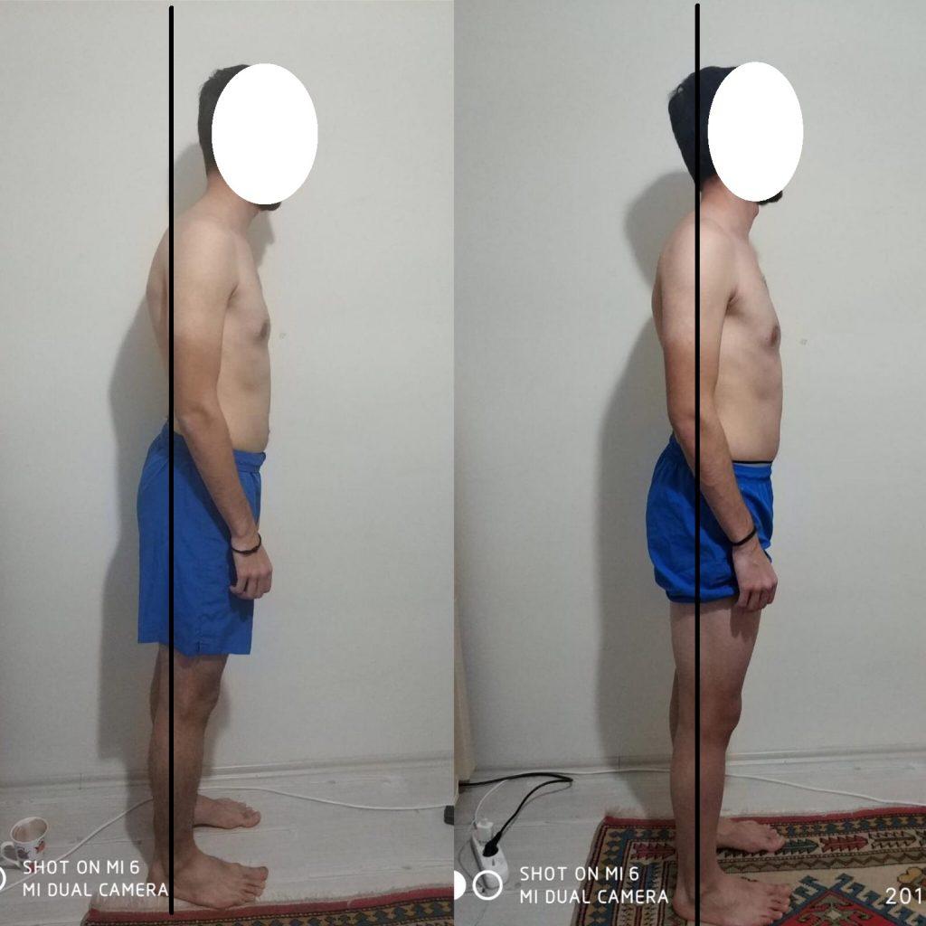 online kişisel eğitmen postur düzeltmesi